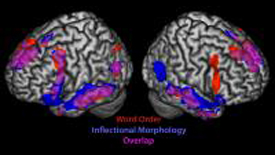 Multiple Brain Regions Wired for Language